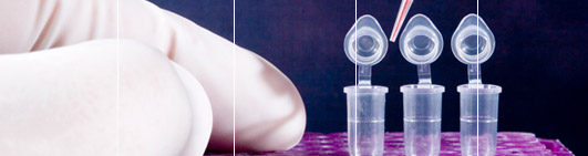 DNA Forensic Testing including Hair DNA Test. Specialised service.